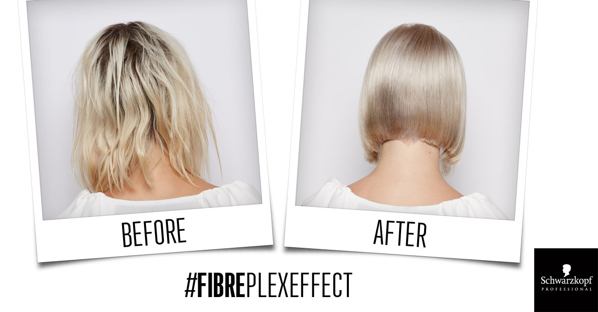 Fibreplex before and after